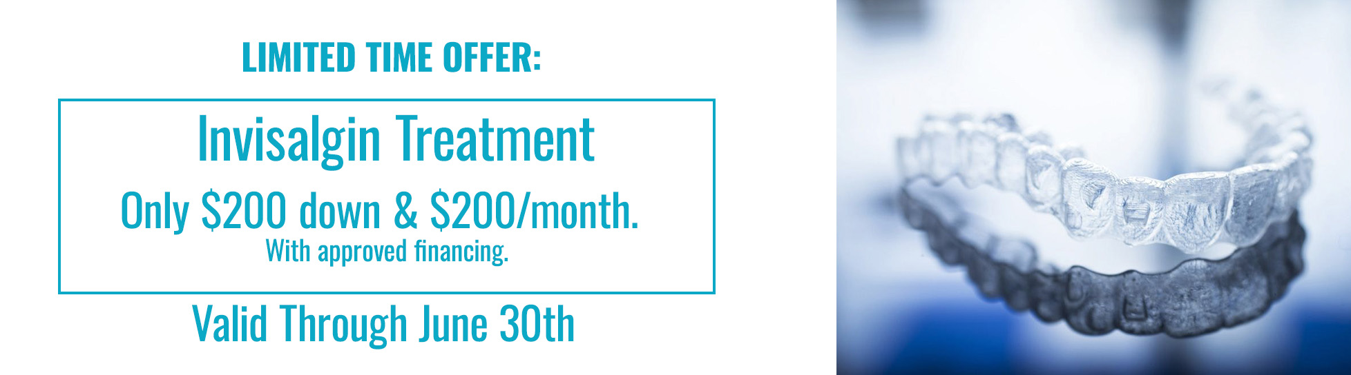 Limited Time Offer Invisalign Treatment Cheap