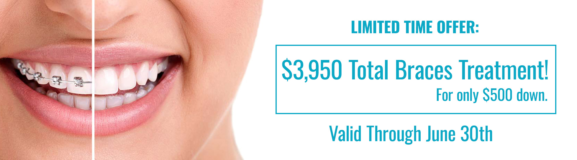 Cheap Braces for only $3950 Treatment